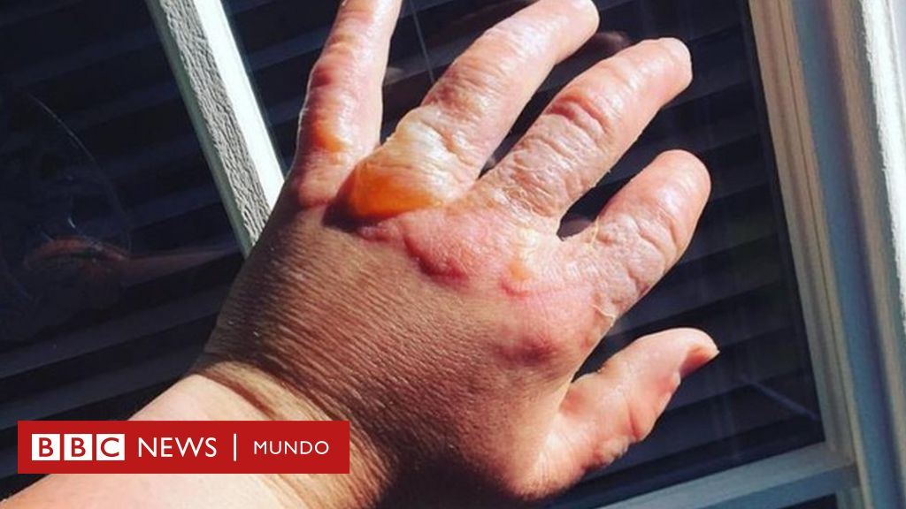 como se puede cicatrizar solfa syllable dermatitis linear unit las manos