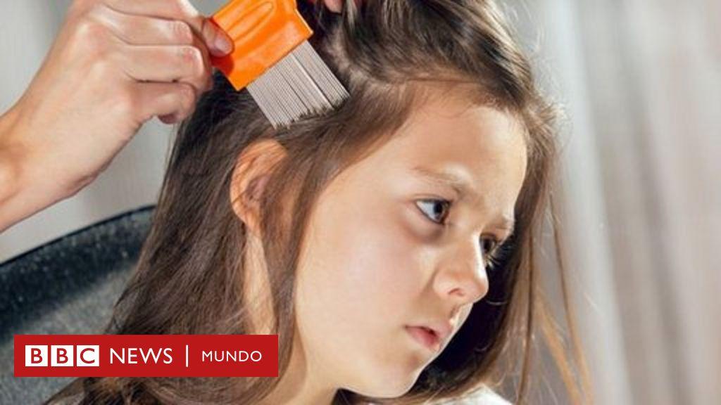 cómo sacar huevos de cabeza de pelo