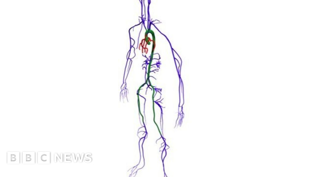 Supercomputer simulates whole-body blood flow - BBC News