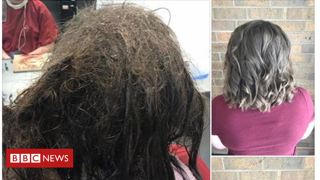 Hairdressers Refuse To Shave Depressed Teens Matted Hair Bbc News