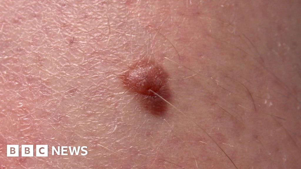 Melanoma blood test: Scientists unveil 'world-first' research - BBC ...