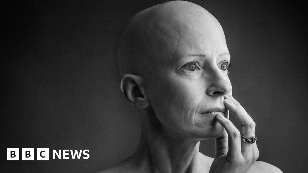 'Gritty and real' views of breast cancer
