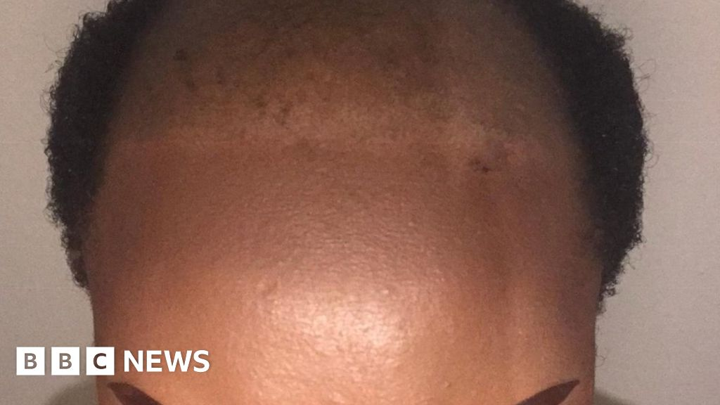 african-women-on-the-shame-of-hair-loss