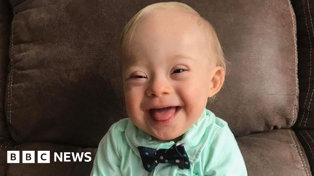 99935507 gerberbaby - US Down's toddler becomes face of food company
