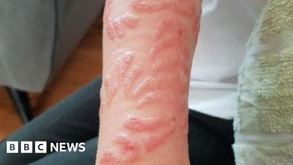 Black Henna Tattoo Burns: 'Black Henna' Tattoos Leave Boys With Chemical Burns