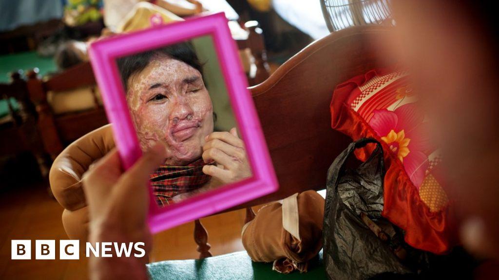 Medical Martial Law in Sierra Leone: Ebola Victims Hunted