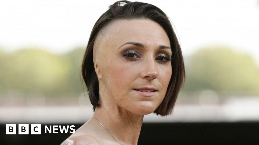 Acid attack victim Adele Bellis 'grateful for the NHS' - BBC News