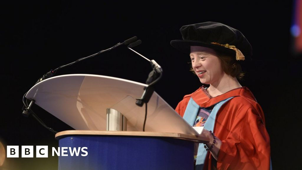 Actor with Down's gets honorary degree