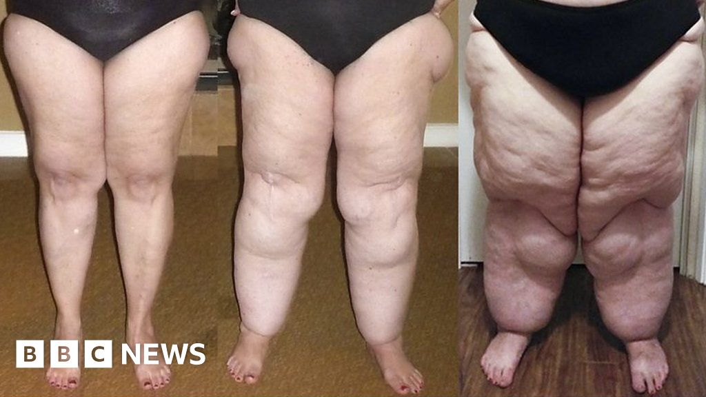 Why your fat legs might not be your fault - BBC News