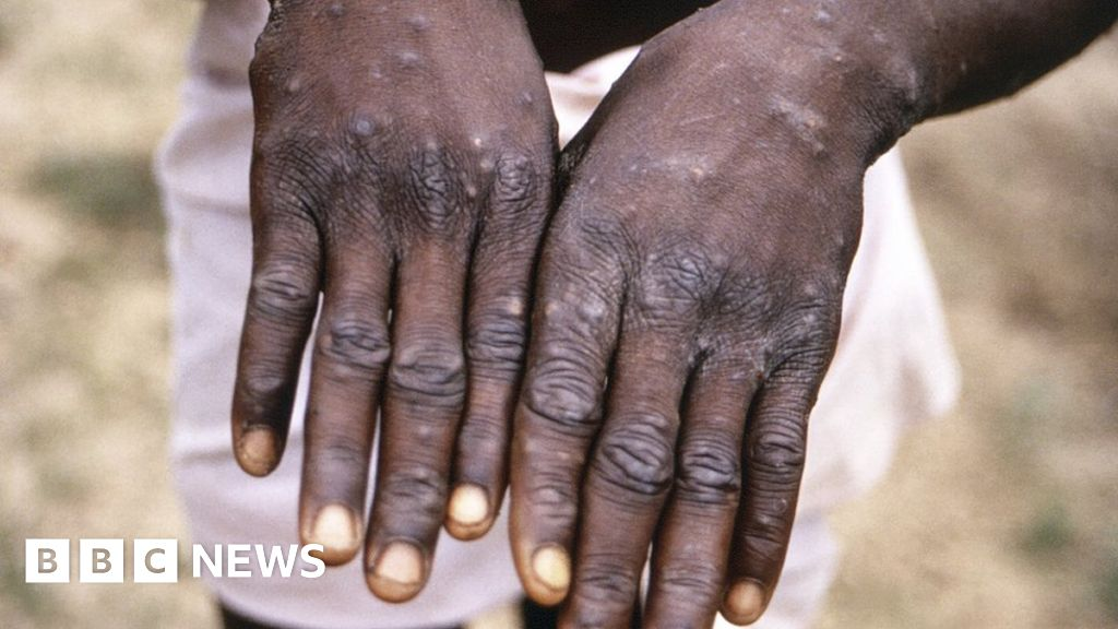 Monkeypox: More than 200 contacts tracked in US for rare disease - BBC News