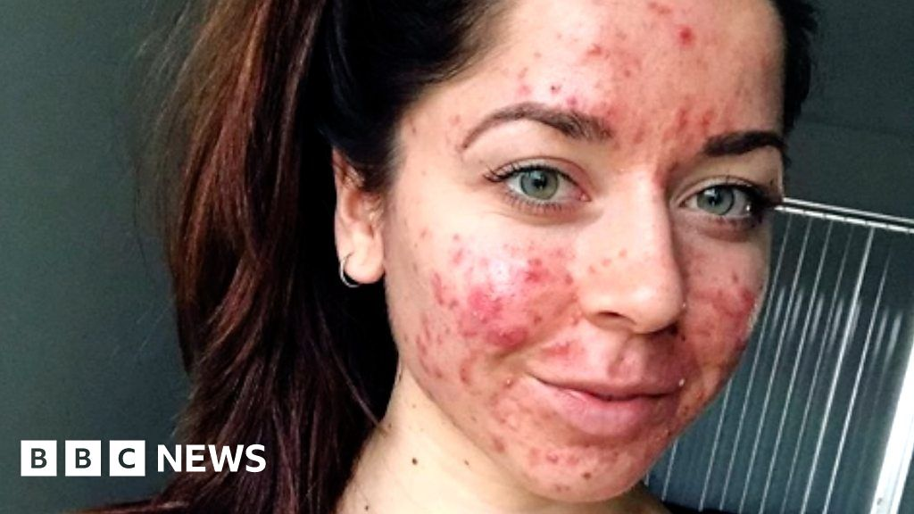 How A Personal Trainer Learnt To Live With Cystic Acne Bbc News