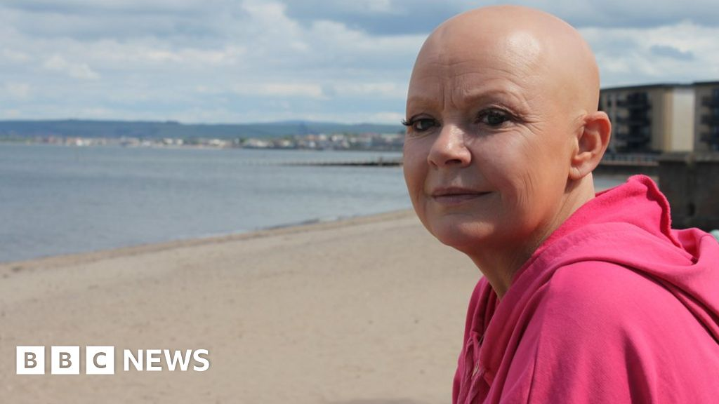 "Gail Porter: ""Everyone saw me naked, inside I was breaking"