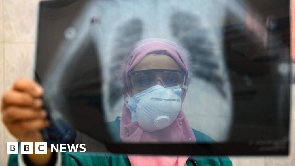 Coronavirus: Egypt doctors accuse government over medics' deaths thumbnail