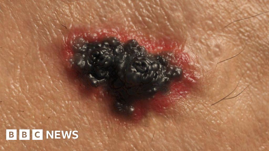 Skin cancer: Half of people surviving advanced melanoma