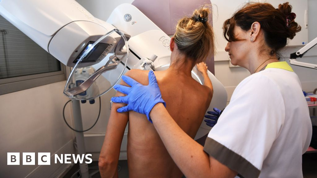 Breast screen error 'could have been spotted earlier'