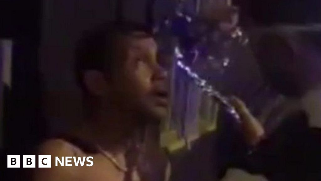 Acid attack victim doused with water