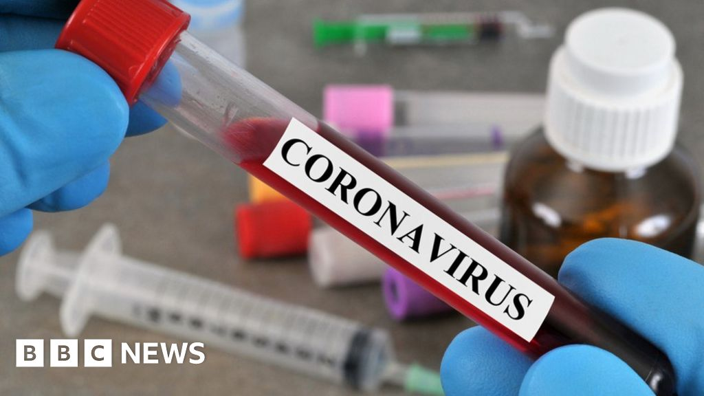 Coronavirus: Home tests won't be available 'next week'