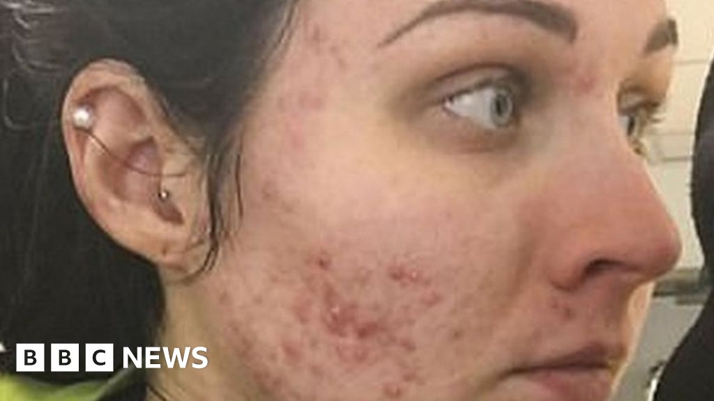 I woke up one day with severe acne' - BBC News