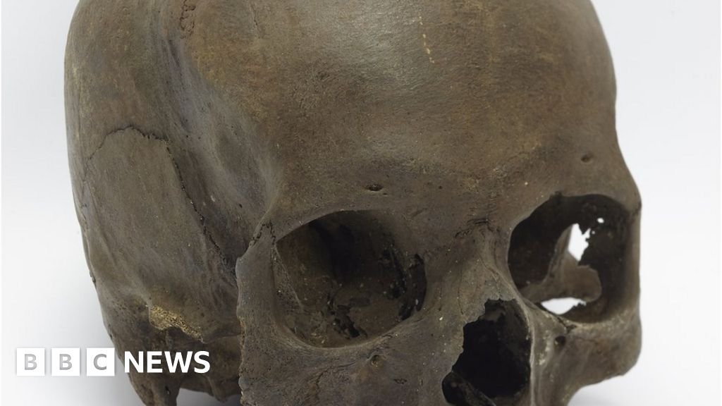Skull found by dog walker is Iron Age