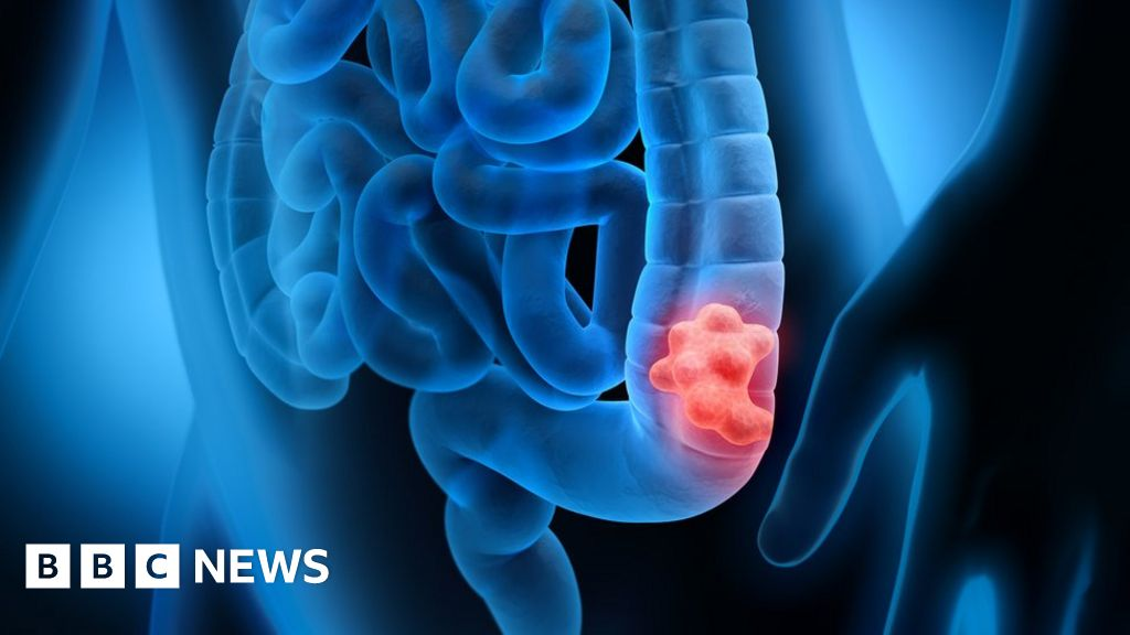 E. coli gut infection linked to bowel cancer