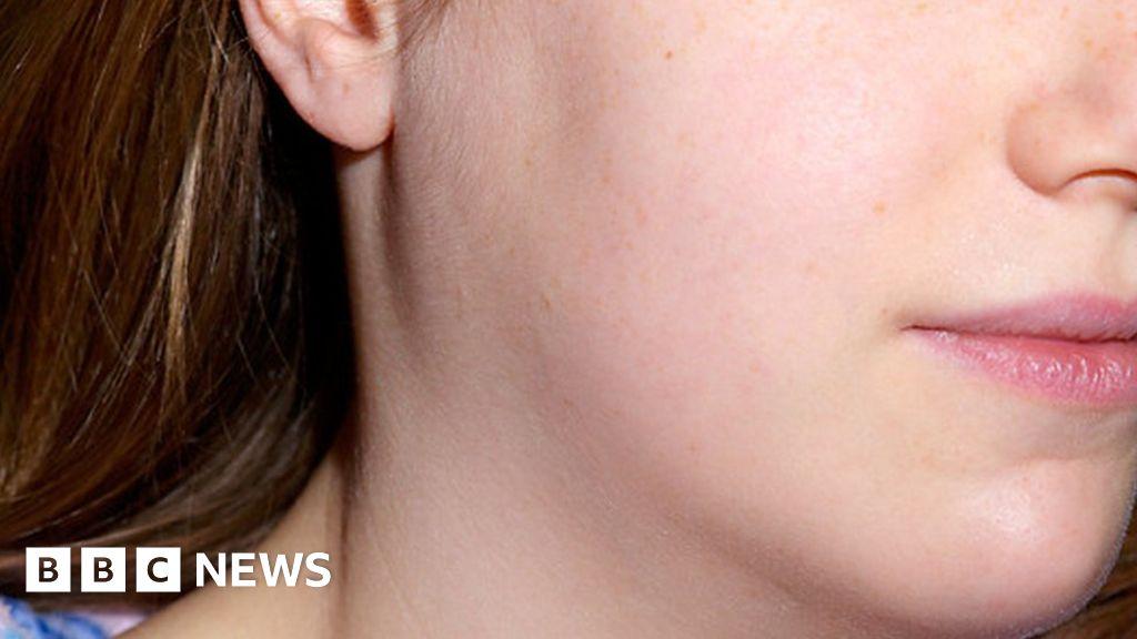 Mumps - is it the forgotten disease? - BBC News