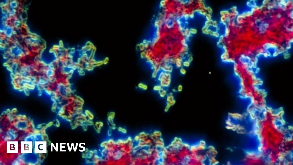 China bubonic plague: WHO 'monitoring' case but says it is 'not high risk' - BBC News