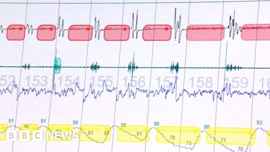 Sleep Disorder Testing Carried Out By Nhs Doubles Bbc News
