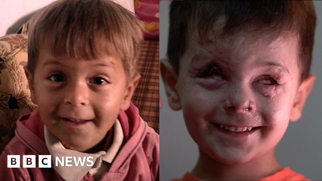 A young face scarred by Syria war thumbnail