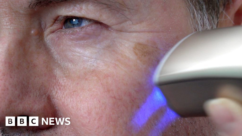 Skin printer wipes years from your face