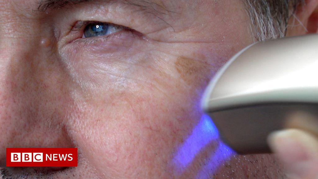CES 2019 | Skin printer wipes years from your face