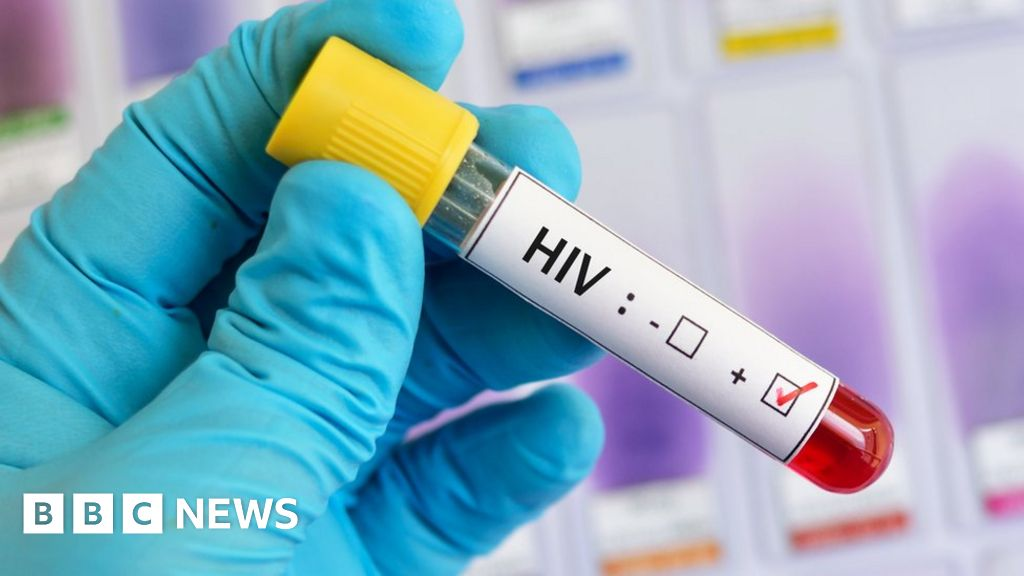 HIV infection rate falls by 73% in the UK