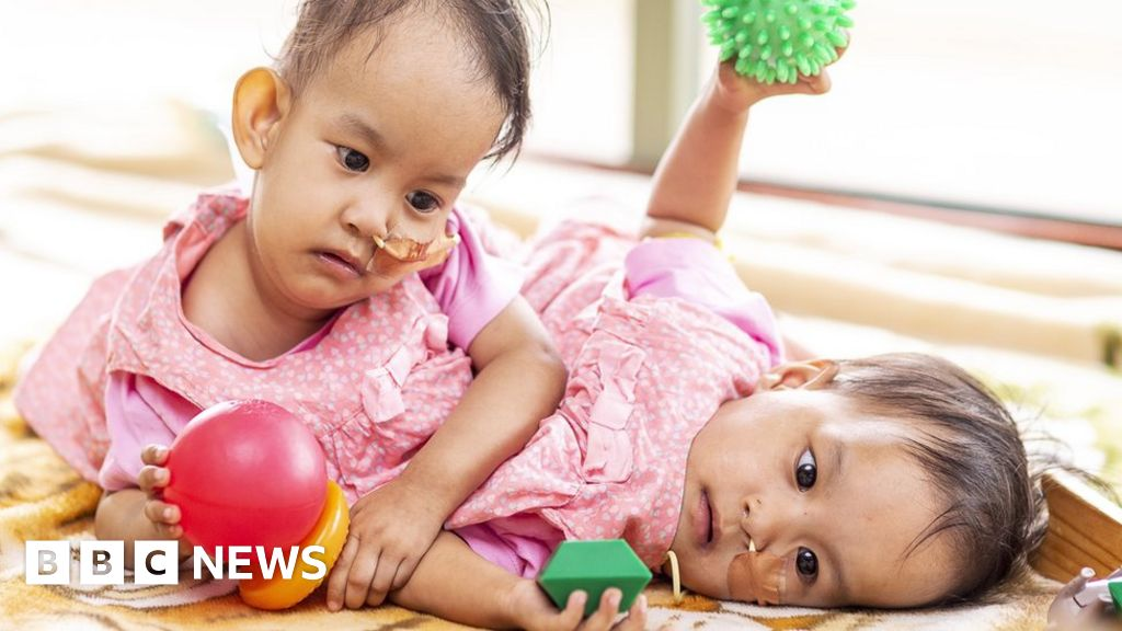 Doctors begin surgery on conjoined twins