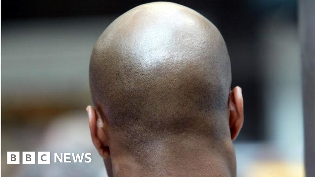 Mozambique police warn bald men after ritual attack - BBC News