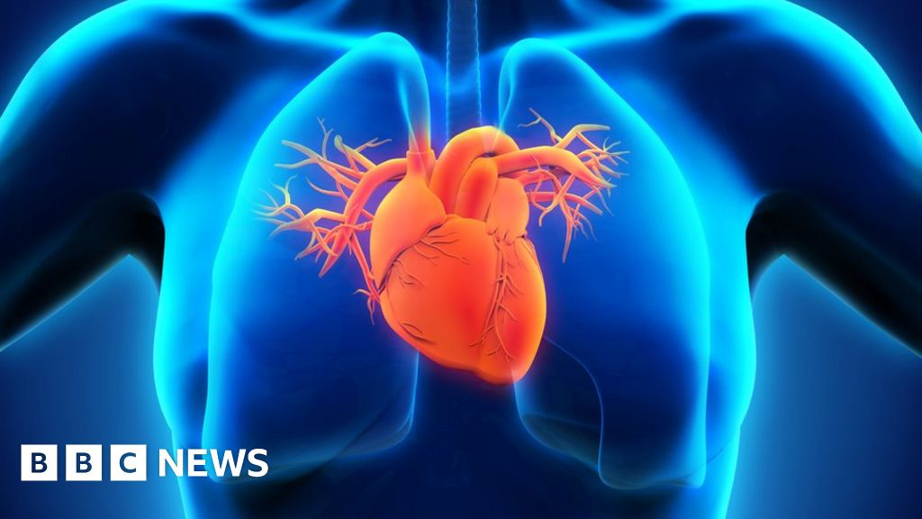 Heart doctors 'held back stent death data'