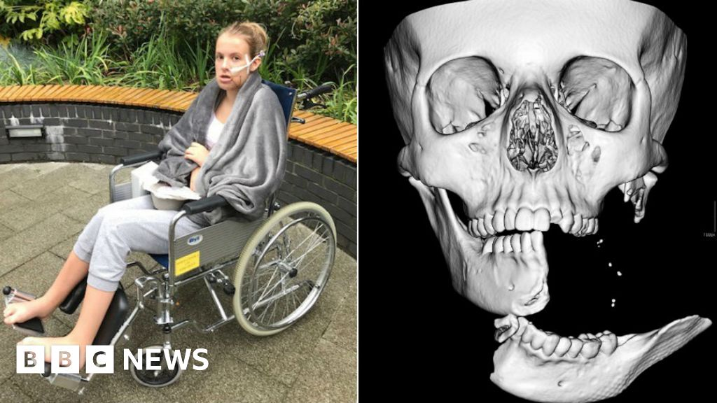 Teenager's jaw rebuilt after horror horse accident in Derbyshire