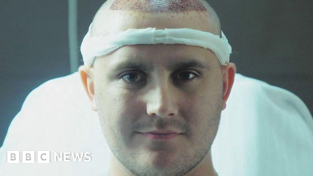 Hair transplants: Fighting against my receding hairline ...