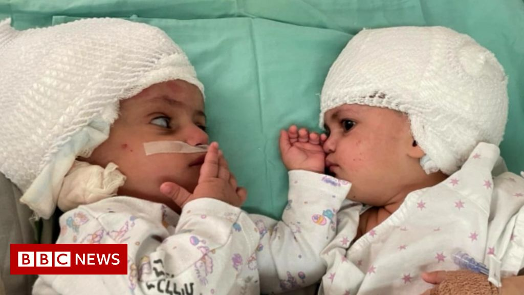 , Twins who were conjoined see each other first time, The World Live Breaking News Coverage & Updates IN ENGLISH