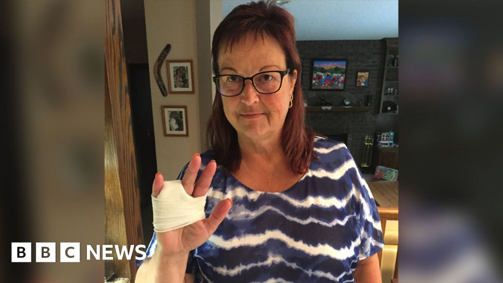 Woman's finger amputated after ring catches on a waterslide