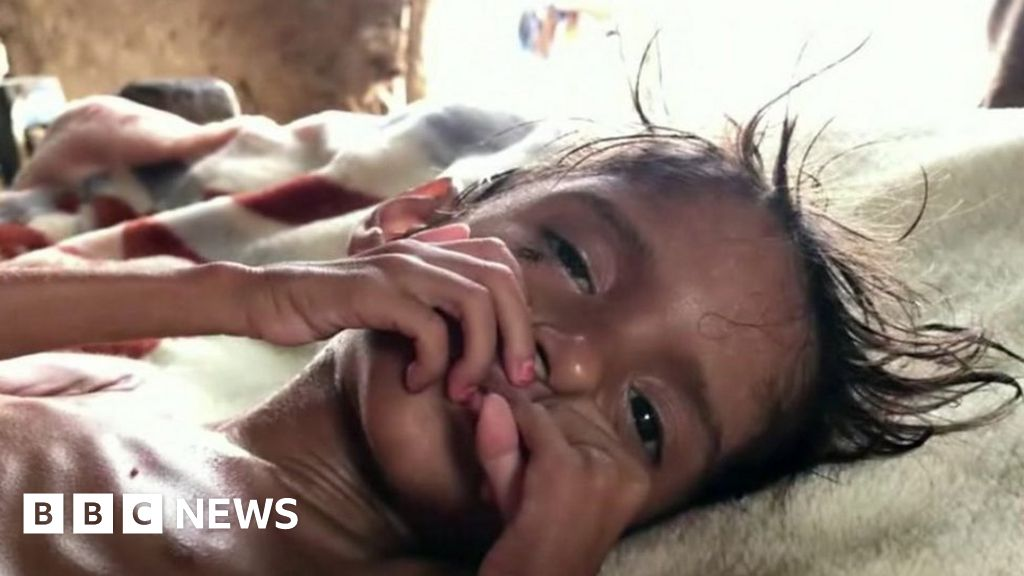 Yemen disaster: Five years of starvation, 5 years of struggle thumbnail