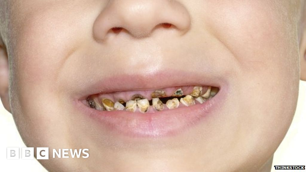Tooth decay is the most common reason for young children ... |Decayed Toddler Teeth