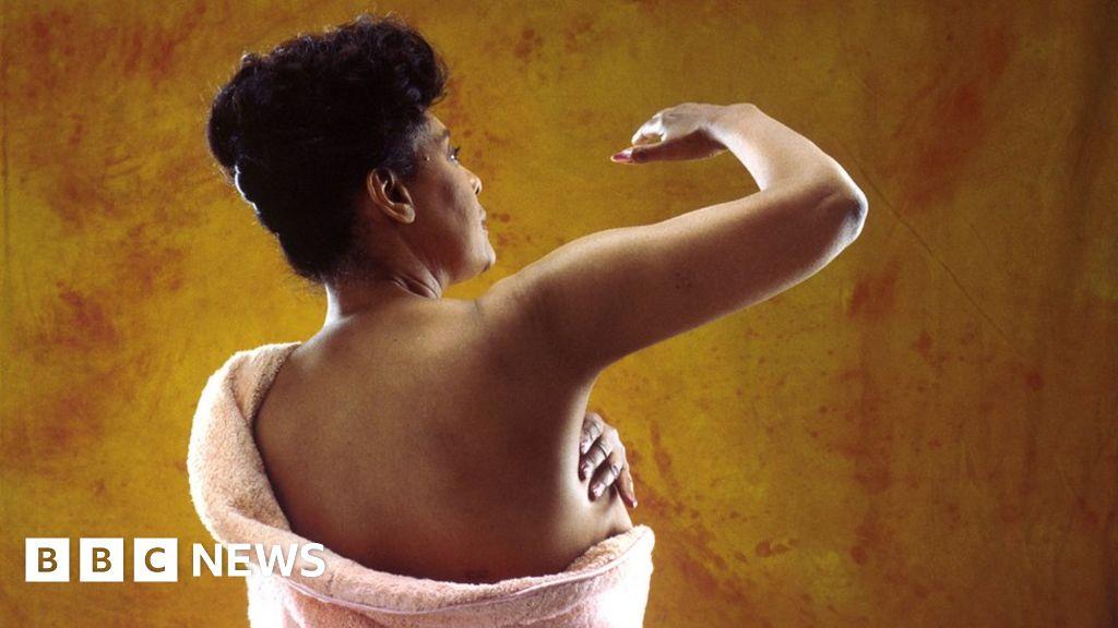 Breast Cancer More Often Advanced In Black Women Bbc News