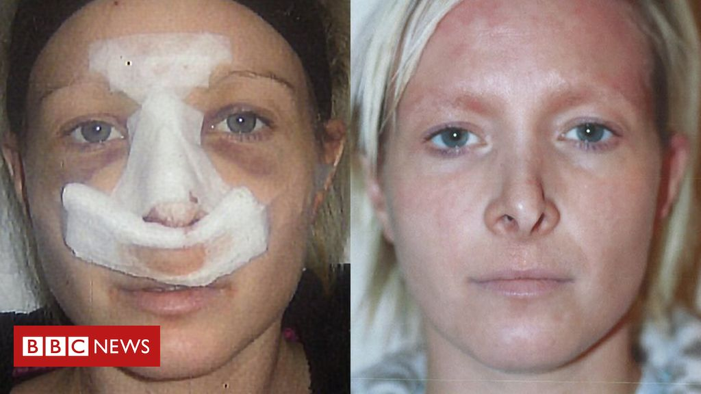 My doctor flew off when cosmetic surgery went wrong thumbnail