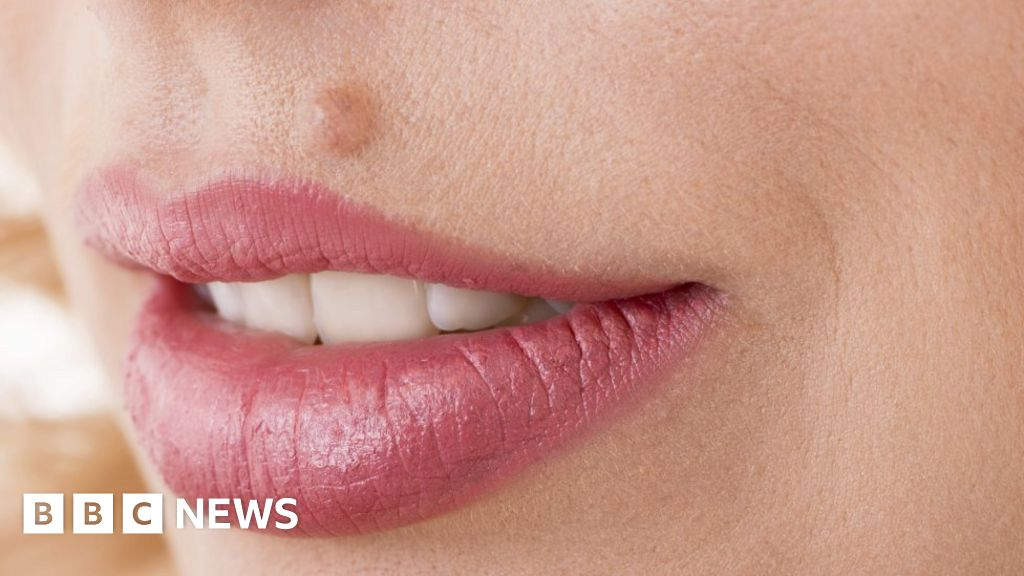 Why do so many people want their moles removed? - BBC News
