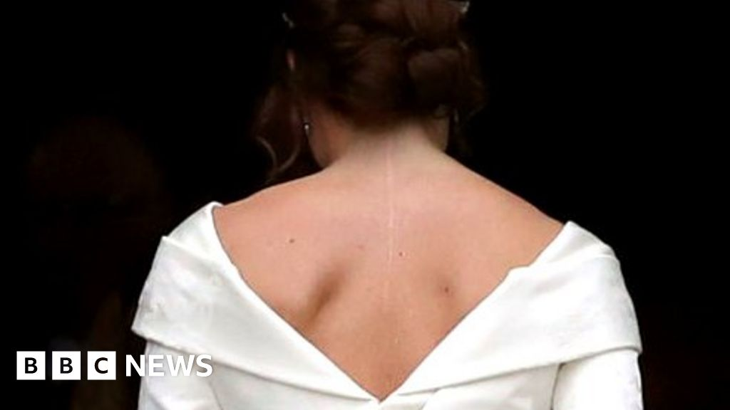 'I wanted wedding dress to show my scar'