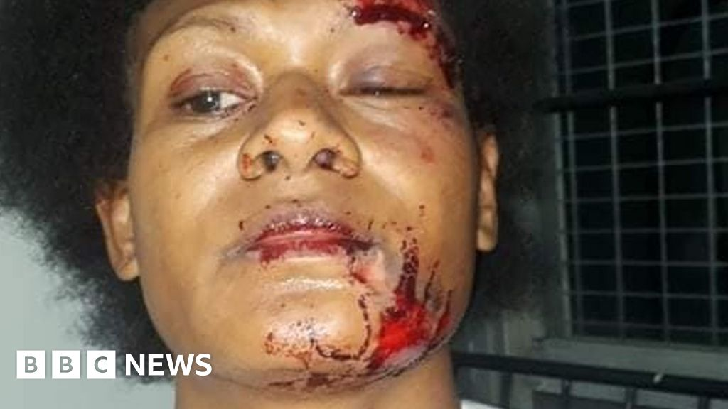 """Debbie Kaore: Papua new Guinea-Sport star """"is attacked by partner"""""""