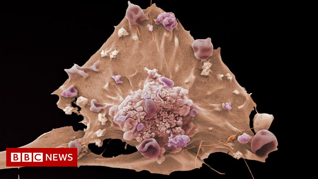 Scientists seek clues to 'birth of cancer'