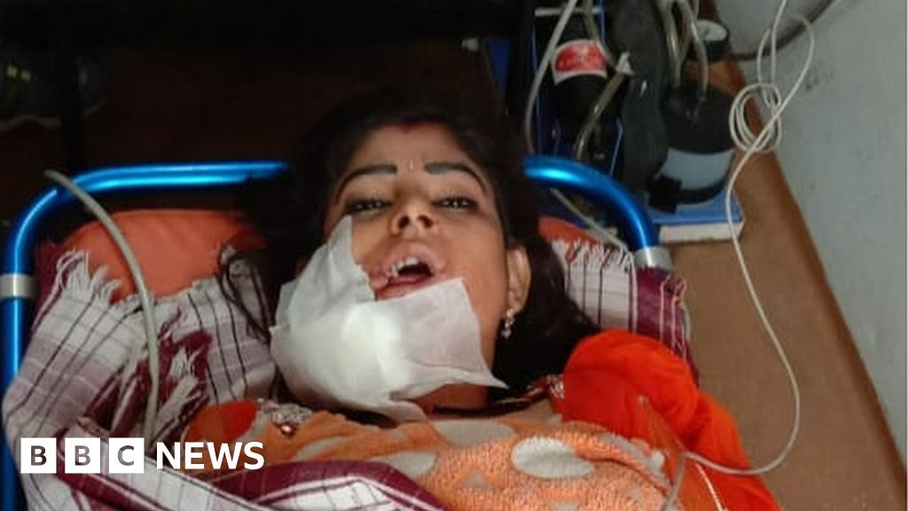 India woman shot for 'pausing dance' at wedding