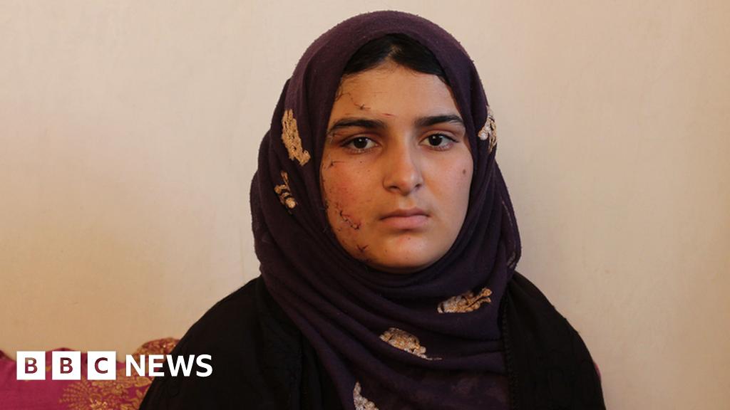 Surviving a week in Afghanistan