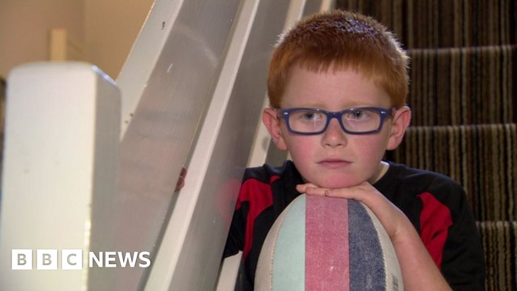 3863ad10b91 Rugby boy Ryan makes appeal to Irish rugby chiefs over ban on wearing  goggles - BBC News