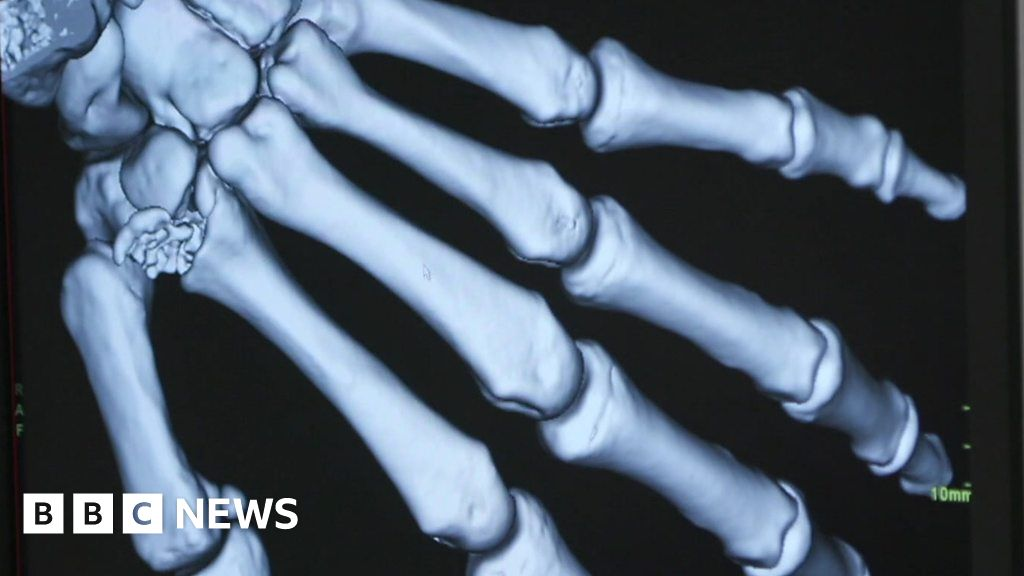 Covid-19 brings remote medicine revolution to the UK